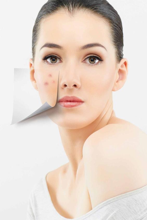 Gáspár Medical bőrgyógyászat kozmetológia aknés pattanásos arc