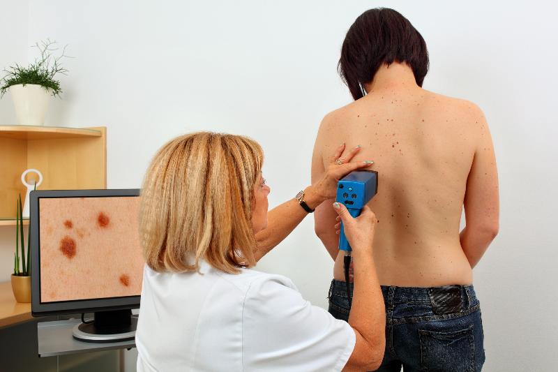 Gáspár Medical bőrgyógyászat kozmetológia pigmentfoltok májfoltok kezelése