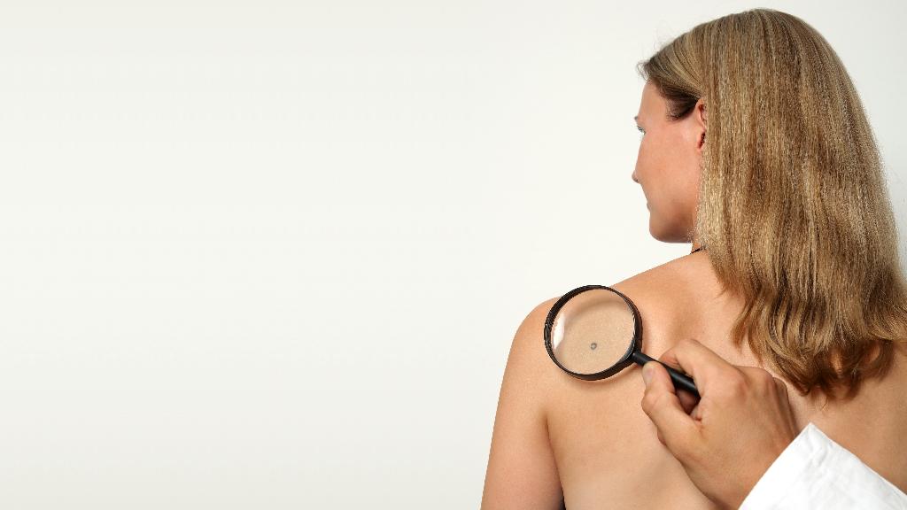 Gáspár Medical bőrgyógyászati lézerkezelés anyajegy szemölcseltávolítás