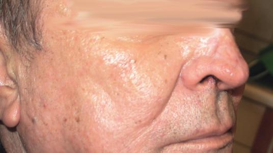Gáspár Medical bőrgyógyászat kozmetológia hajszálér tűzfolt rosacea rhinophyma borvirágos orr kezelése