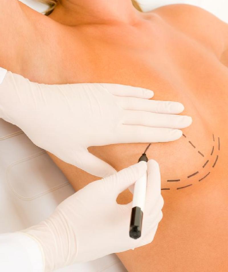 Gárpár Medical plasztikai sebészet mellkorrekciós műtétek