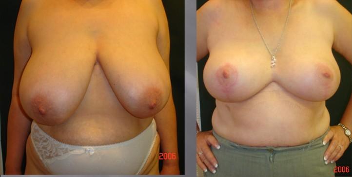 Gáspár Medical plasztikai sebészet mellkisebbítés