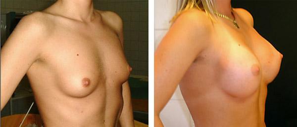 Gáspár Medical plasztikai sebészet mellnagyobbítás